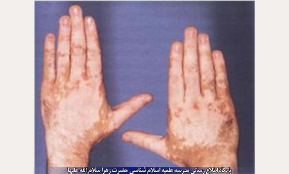 %D8%B3%D9%88%D8%AE%D8%AA%DA%AF%DB%8C درمان آفتاب سوختگی با راهکارهای طبیعی